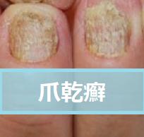 爪乾癬の原因や治療