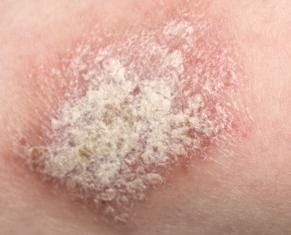 乾癬と鱗屑(りんせつ)
