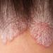 乾癬と頭皮