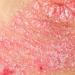 乾癬の初期症状