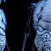 乾癬の原因は内臓か